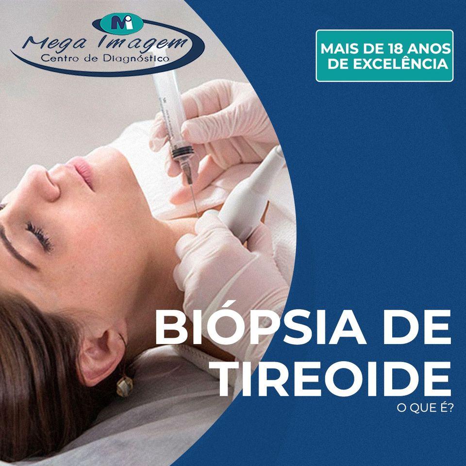 Biópsia de Tireoide