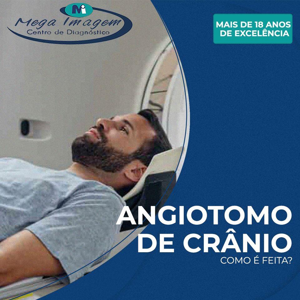 Angiotomografia de Crânio