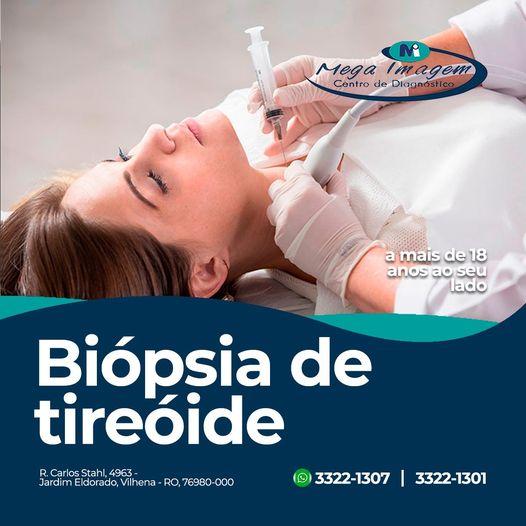 Biópsia Tireóide